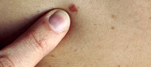 Причины развития меланомы