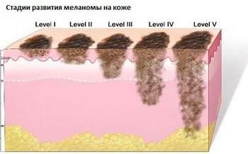 Классификация и стадии меланомы